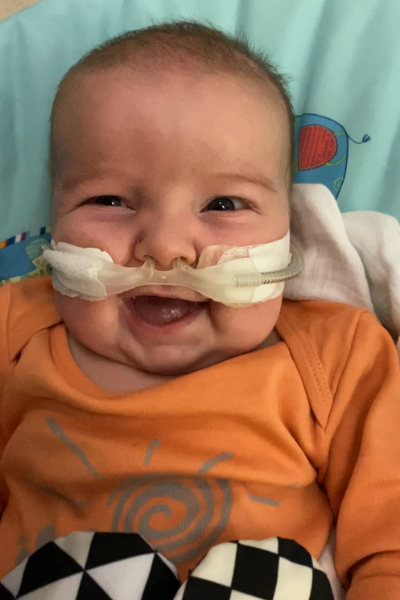Smiling baby with oxygen